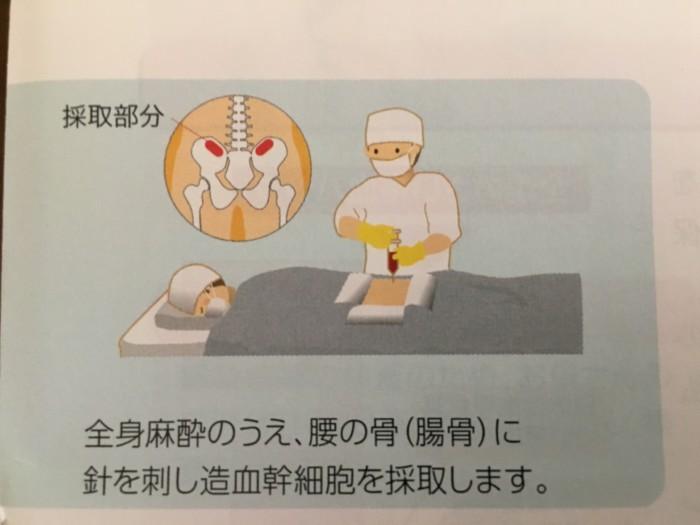 骨髄採取部分の画像